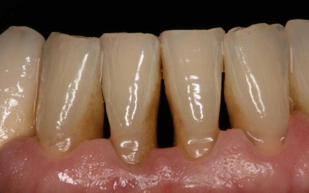 enfermedad periodontal signos y sintomas