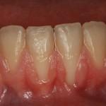 Tipos de enfermedades de las encías