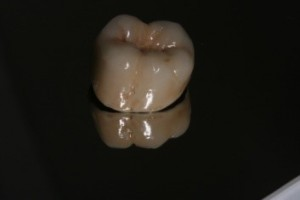 Protesis Dentales Fijas Cerámica