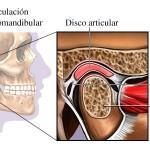 Dolor de la articulación temporomandibular