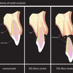 Avulsión Dentaria