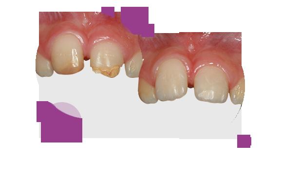 """""""Estos casos de amelogénesis imperfecta en niños se han solucionado con carillas de composite, previamente a un tratamiento de ortodoncia, para que los dientes tengan un aspecto sano y estético."""""""