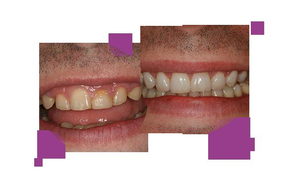 """""""En este caso el paciente se presentó con unas carillas de composite deterioradas, junto con otras alteraciones de posición y proporciones dentarias, y se optó por solucionar con tratamiento combinado de ortodoncia, recontorneado de la encía, blanqueamiento y carillas cerámicas."""""""