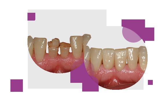 """""""Los incisivos inferiores en un paciente adulto con defectos en el esmalte fue solucionado con carillas de cerámica feldespática"""""""