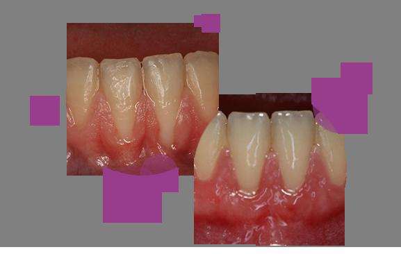 caso-periodoncia-1