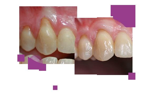 caso-periodoncia-2