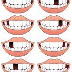 Cómo reponer un diente perdido