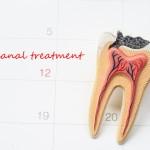 ¿Duele una endodoncia?