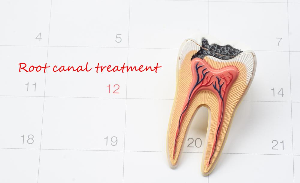¿Cómo se hace una endodoncia?