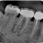 Endodoncia mal hecha