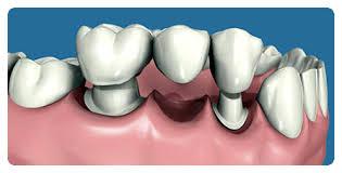 Prótesis Dental Fija Dentosoportada