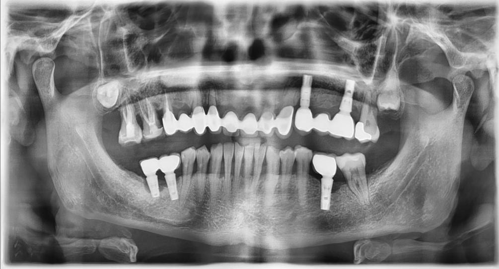 Implantes dentales. Complicaciones