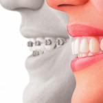 Tipos de ortodoncia invisible en el Sistema Invisalign