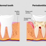 Periodontitis: síntomas