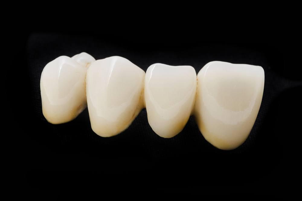 protesis-dentales-fijas-puente-2
