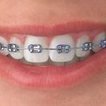 Qué es una ortodoncia