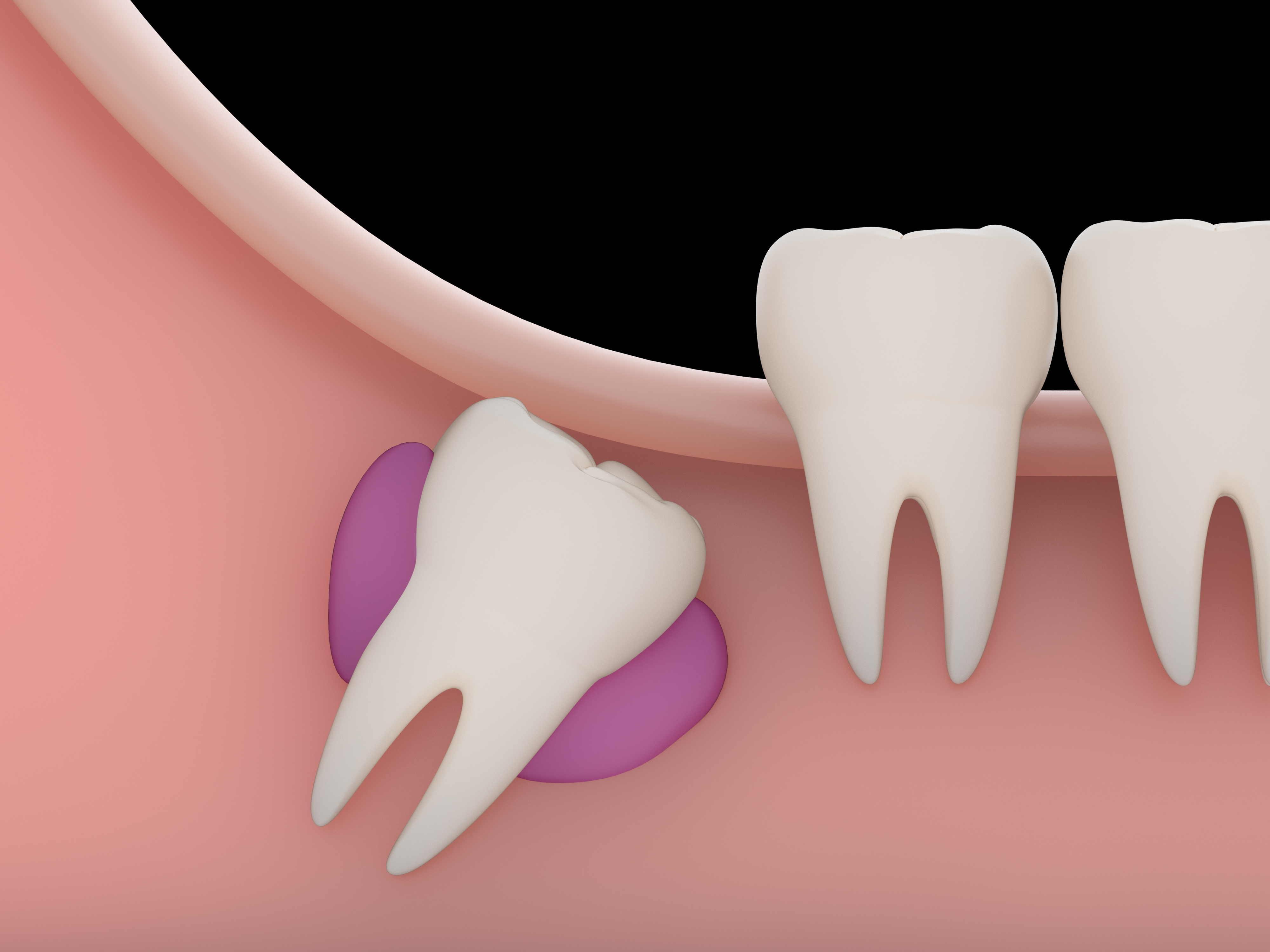 quistes dentarios