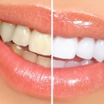 Tipos de blanqueamiento dental