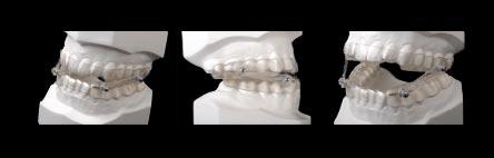 tipos-de-ferulas-apnea-del-sueño-4