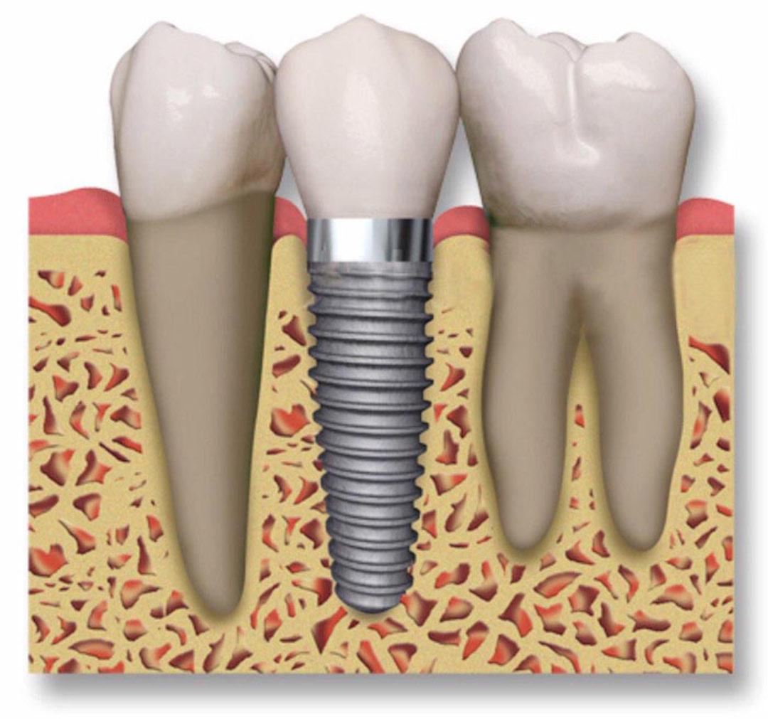 como reponer un diente perdido